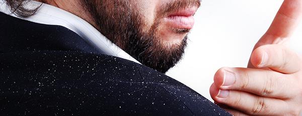 フケが多い人は注意、フケは薄毛の原因になる?