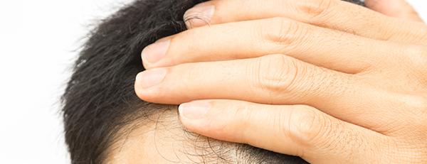 AGAの治療にステロイドが有効って本当?