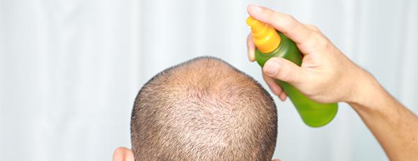 AGA治療には育毛剤だけでなくサプリメントも使おう