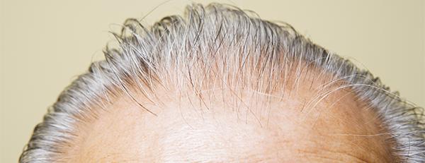 白髪になりやすい人はハゲにくいってホントなの?