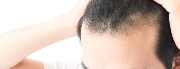 生え際の薄毛を解消したい! 生え際の後退にもHARG療法の効果は出る?