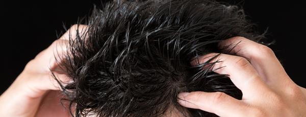 HARG療法か自毛植毛のどちらを選ぶ? 2つの違いとは