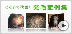 発毛症例集